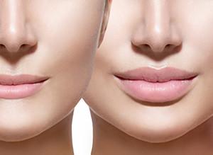 Увеличение губ: полезная информация