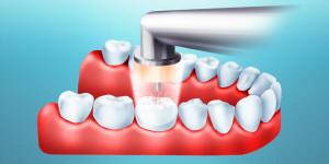 Инновационное лечение зубов без бормашины и пломбирования