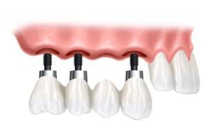 Еще раз о протезировании и имплантации зубов в Белоруссии