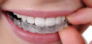 Что такое ортодонтия