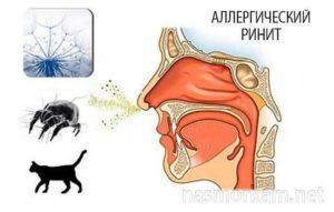 Аллергический ринит