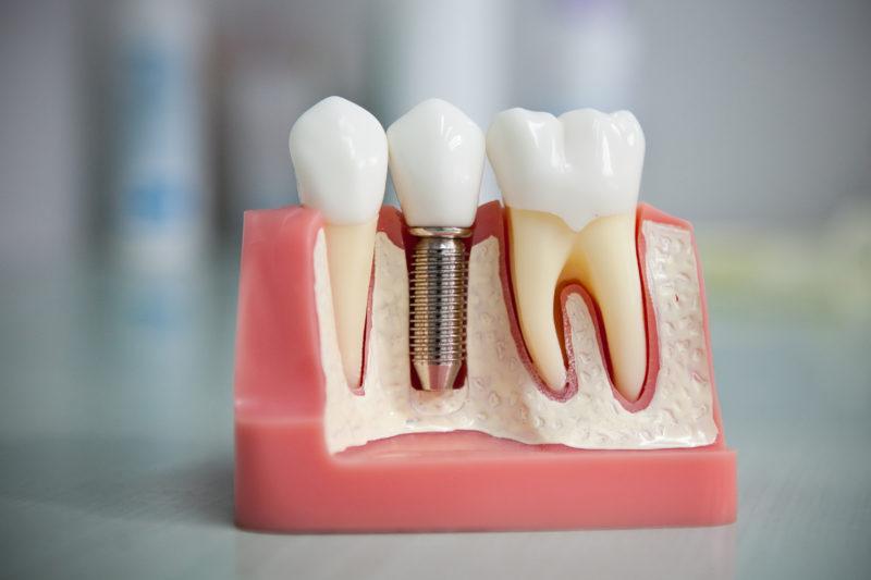 Пломбировочные материалы в детской стоматологии